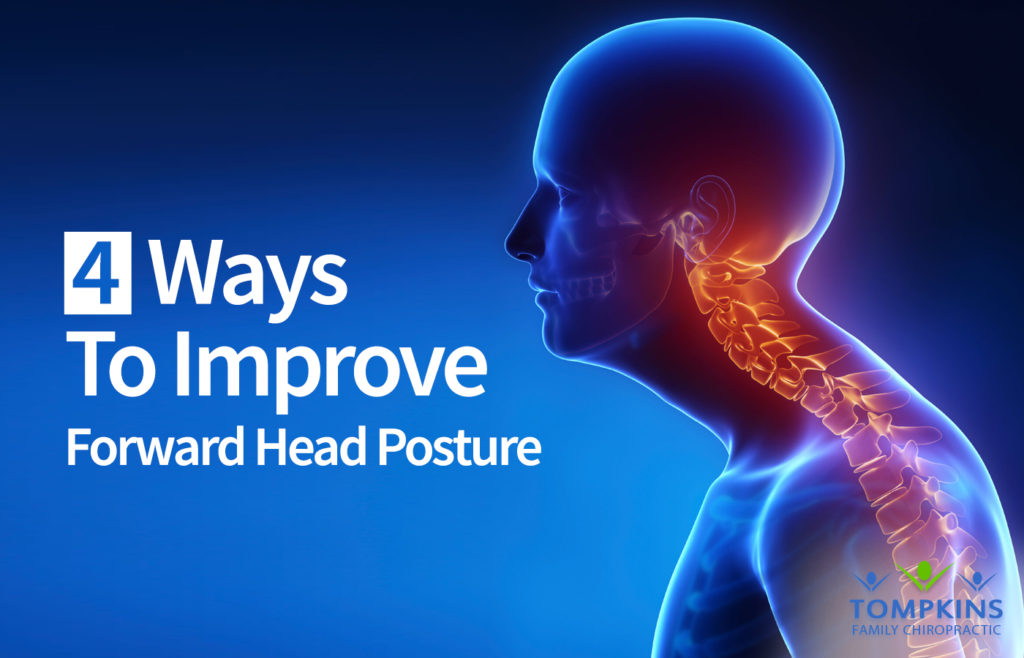 Forward Head Posture Corrected In 4 Simple Steps – Tucson Chiropractor